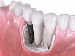 low-cost-dental-implant